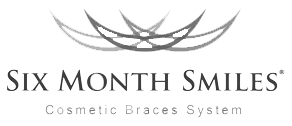 Six Month Smiles - Cosmetic Braces System
