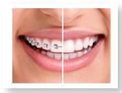 Otthodontics
