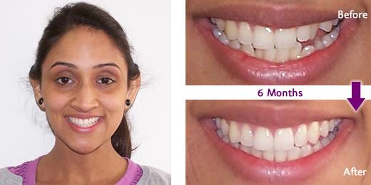 austin 6 month smiles dentist hutto tx