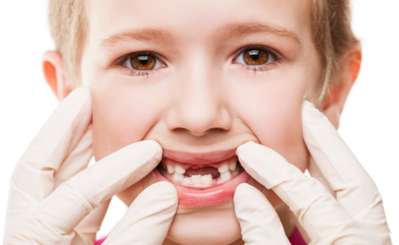 protecting your child's teeth hutto tx dentist