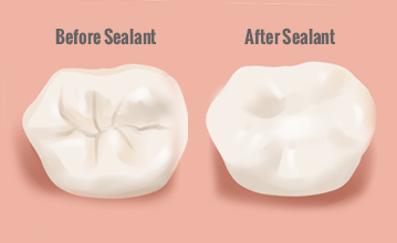 sealant for your teeth hutto tx dentist