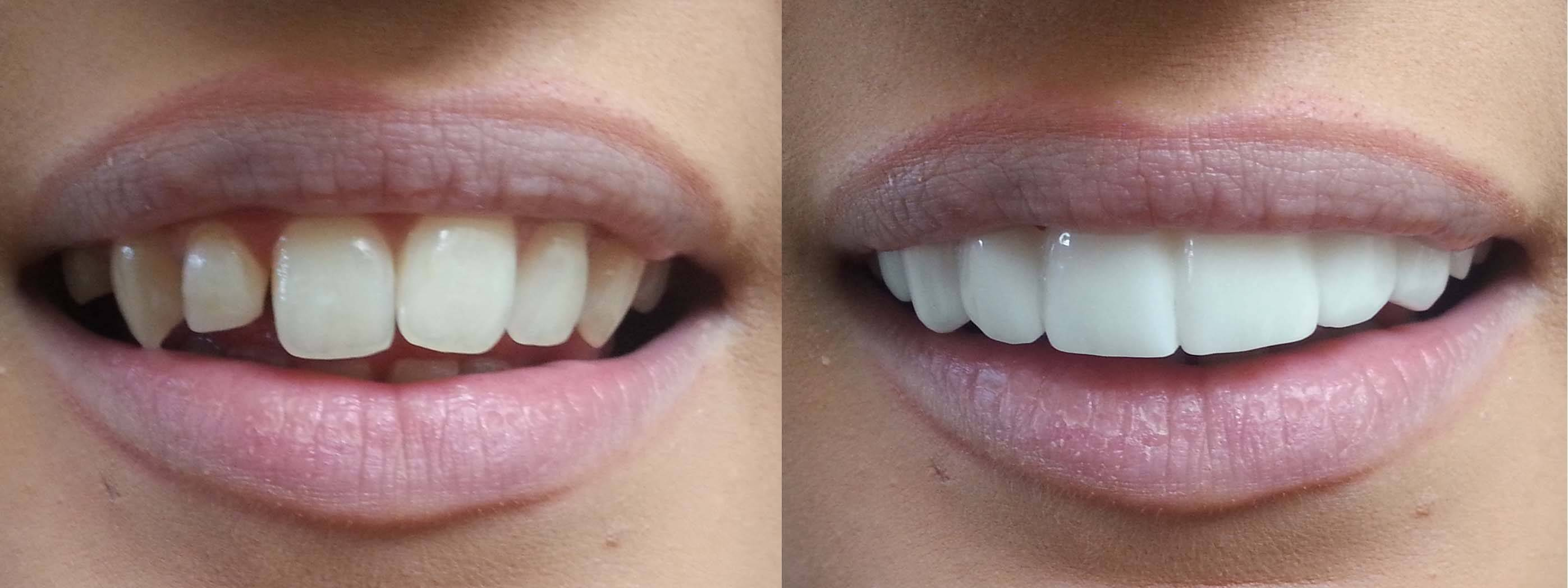 Veneers: What's in a Beautiful Smile? - Hutto Hippo
