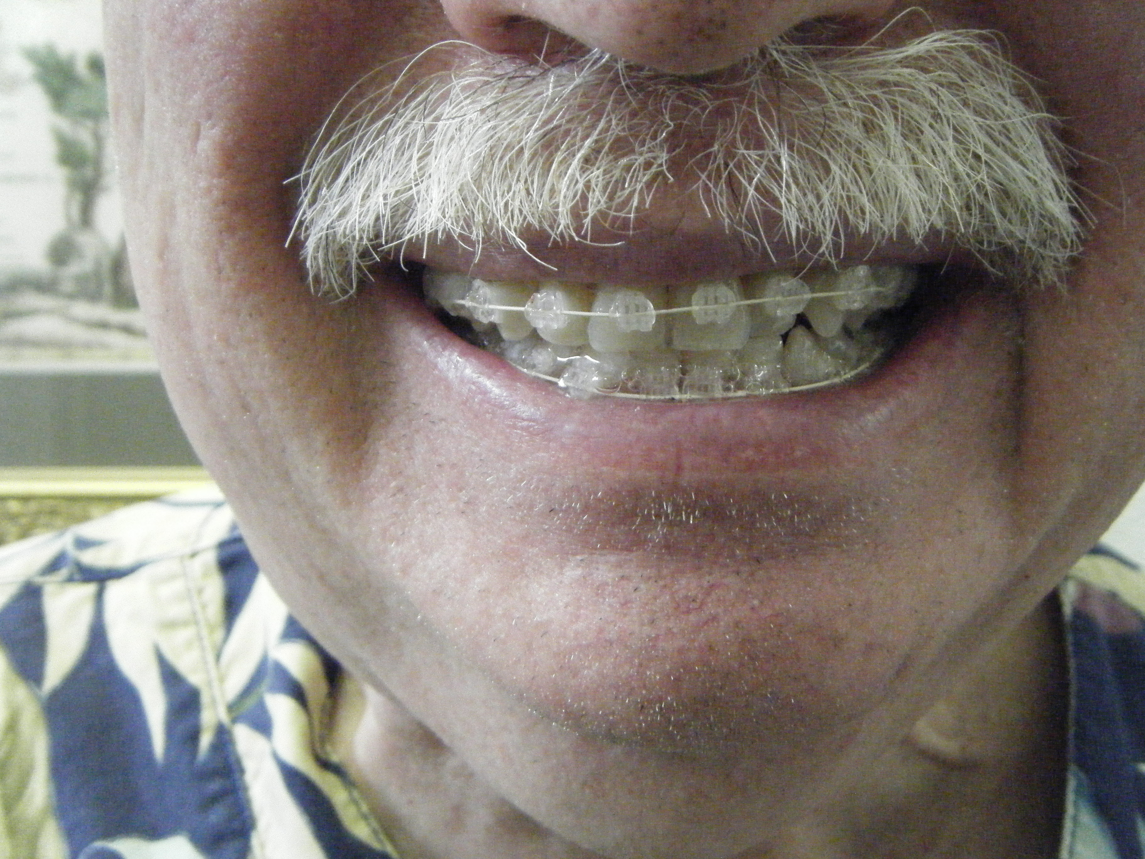 braces for adults at any age hutto texas