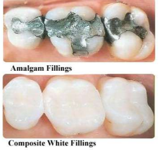 tooth metal fillings and composite fillings for teeth