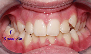 crossbite, hutto texas dentist