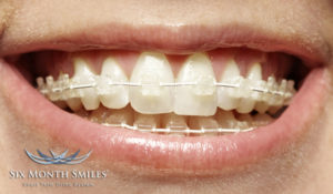 when your kids need braces hutto tx dentist six month smiles