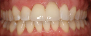 dental studies and innovation hutto tx dentist