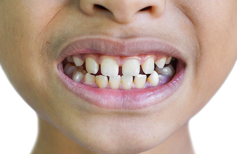 Should You Be Concerned About Gaps Between Teeth? - Hutto