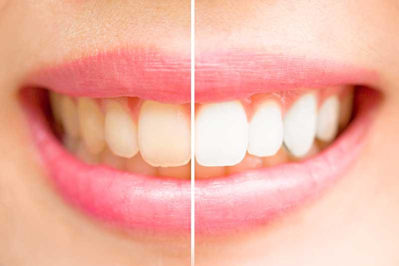 whiter-teeth